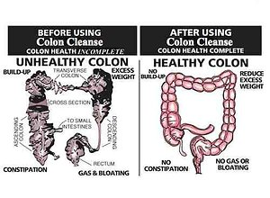 Preparation and Pet Pointers. colon cleanse